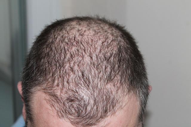 Cómo detener el retroceso del cabello rápidamente